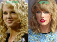 Taylor Swift nose job and possible blepharoplasty