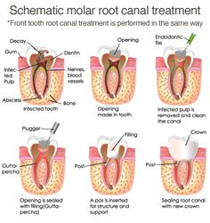 endodontic therapy or root canal therapy is a sequence of treatment for the infected pulp of a tooth which results in the