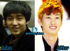 Eunhyuk Plastic Surgery Before and After Photos | http://plasticsurgeryfact.com/eunhyuk-plastic-surgery-before-and-after-photos/