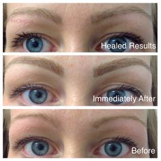 This is what a blond eyebrow hairstroke treatment looks like immediately after the procedure, and then several months after it's been healed. Say no to red eyebrows and choose non color changing ink for your blonde eyebrows! Permanent Ink Clinic guarantees non-color changing inks! We fix eyebrows all to often, come get