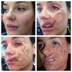 Step by step of the chemical/acid burn scarring: great for halloween Makeup Fx, Zombie Makeup, Scary Makeup, Cosplay Makeup, Costume Makeup, Face Makeup, Special Makeup, Special Effects Makeup, Maquillage Sf