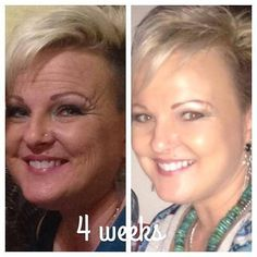 This is DEE RATER from my R+F team. This is NOT a mother-daughter pic. This is HER….BEFORE Rodan + Fields, and AFTER using Rodan + Fields for just FOUR WEEKS (Redefine and Acute Care)!! NOT EVEN KIDDING! Do these products work? YES! My own skin has completely changed….and THAT is why I get so excited about these products! REAL PEOPLE…..REAL RESULTS!! You ready? Message me! www.nicoledudley.myrandf.com
