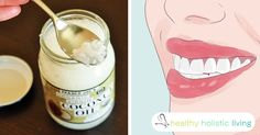 10 Health Benefits of Oil Pulling:  Oil pulling is an ancient Ayurvedic practice used to help improve oral health and detoxification. It involves the use of pure oils in order to pull harmful bacteria, fungus, and other organisms out of the mouth, teeth, gums and throat. The benefits of oil...More