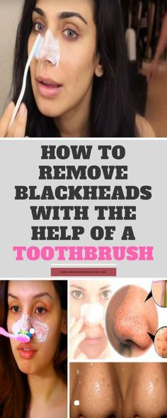 To Remove Blackheads & The Help Of A Toothbrush! How To Remove Blackheads & The Help Of A Toothbrush! How To Remove Blackheads & The Help Of A Toothbrush! Blackhead Remedies, Blackhead Remover, Home Remedies, Natural Remedies, Herbal Remedies, Health Remedies, Holistic Remedies, Arthritis Remedies, Hacks