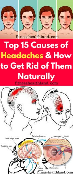 Top 15 Causes of Headaches and How to Get Rid of Them Naturally