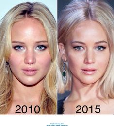 Jennifer Lawrence did mention that she had a nose job done not for cosmetic purposes but more for correction purposes a deviated septum Her old nose used to look rounder. Acne On Nose, Bulbous Nose, Plastic Surgery Before After, Celebrities Before And After, Botox Before And After, Nose Surgery, Celebrity Plastic Surgery, Hooded Eye Makeup, Rhinoplasty