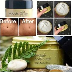 #photojoiner Best Body Butter, Homemade Body Butter, Shea Body Butter, Whipped Body Butter, Whipped Coconut Oil, Stretch Mark Cream, Best Skincare Products, Healthy Skin, Skin Care