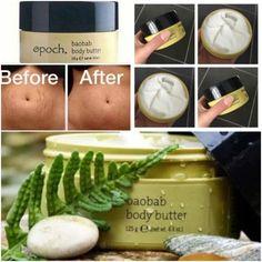 Best Body Butter, Homemade Body Butter, Shea Body Butter, Whipped Body Butter, Stretch Mark Cream, Stretch Marks, Whipped Coconut Oil, Best Skincare Products, Skin Care