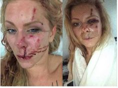 Christian Couple Beaten by Gang of Muslim Youth on their way from Christmas Eve celebrations...
