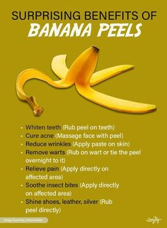 Herbal Remedies, Home Remedies, Natural Remedies, Health And Wellness, Health Fitness, Banana Benefits, Insect Bites, Natural Healing