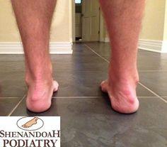 haglunds deformity or pump bump