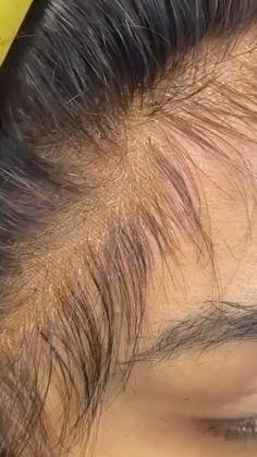 #SmallBumpsOnFace Small Bumps On Face, Virgin Hair Bundles, Mink
