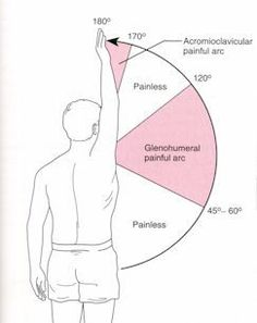 PT Management of Shoulder Impingement Syndrome