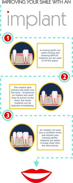 Missing teeth can cause esthetic and functional issues.  Implants can be virtually undetectable, increase chewing ability, and prevent orthodontic problems that result from  losing a tooth.