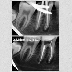 Hello #weekend Abscess on both roots; we will wait for the #healing hopefully soon enough . Have a great day guys. #endodoncia #endodontia #endodontics #endodontic #rootcanal #rootcanals #rootcanaltreatment #endodontist #rct #beirut #kuwait #savingteeth #dentist #dentistry @dental8clinic #dental8_clinic #dental8clinic #dentalmicroscope #microendodontics #revos #micromega by dr.medawar.endodontics Our Root Canals Page: http://www.lagunavistadental.com/services/general-dentistry/root-canals…