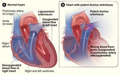Figure A shows a cross-section of a normal heart. The arrows show the direction of blood flow through the heart. Figure B shows a heart with...
