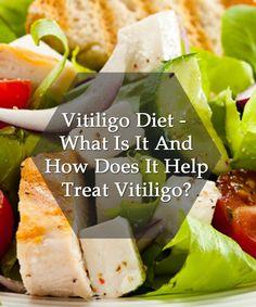 Vitiligo Diet – What Is It And How Does It Help Treat Vitiligo?