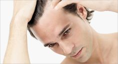 Tip On How To Overcome Male Pattern Baldness