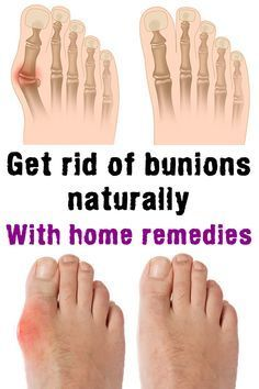 GET RID OF BUNIONS NATURALLY 100% Working