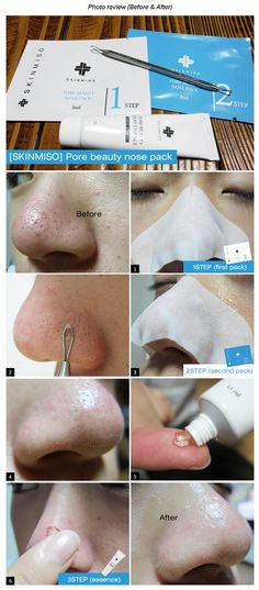 2) Apply Process  > Skinmiso blackhead remover reviews