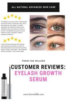 DermalMD's serum is one of the most effective serum around. DermalMD's serum grows ultra-lush eyelashes as guaranteed with healthful ingredients to safeguard the eyelash from external irritants to keep them from breakage. Lash Tint, Advanced Skin Care, How To Grow Eyelashes, Eyelash Growth Serum, Natural Eyelashes, Rosacea, Chemist, Eyelash Extensions, Lush