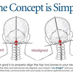 The focus in our office is simple..correct your structure to restore optimal function and health!
