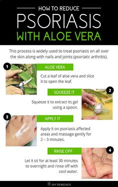 Psoriasis Diet - How to Reduce Psoriasis with Aloe Vera? It's always best to use aloe vera in fresh gel or juice form. Here are the best ways of using aloe vera for treating psoriasis. This process is widely used to treat psoriasis on all over the skin along with nails and joints (psoriatic arthritis). REAL PEOPLE. REAL RESULTS 160,000+ Psoriasis Free Customers