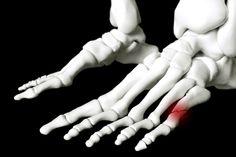 Złamanie V kości śródstopia.