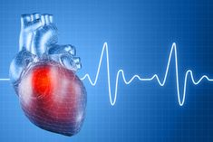Heart Arrhythmias  -  Catheter ablation:   Radio frequency vs. cryoablation......Piedmont Healthcare | Piedmont Living Better