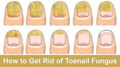 How to Get Rid of Toenail Fungus Fast and Naturally - WATCH VIDEO HERE -> http://bestdiabetes.solutions/how-to-get-rid-of-toenail-fungus-fast-and-naturally/      Why diabetes has NOTHING to do with blood sugar  *** fasting to get rid of diabetes ***  Toenail fungus, or onychomycosis, is a problem many people have. Some signs of it are inflammation, swelling, yellowing, and thickening or crumbling of the nail. Certain things help the fungus grow, like...  Why diabetes has N