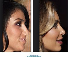 Kardashian before and after the nasal job, lip augmentation, skin laser, botox, ch Nose Fillers, Dermal Fillers, Botox Fillers, Marie Osmond, Chin Filler, Kim Kardashian Before, Botox Lips, Under Eye Fillers, Chin Implant