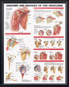 Anatomy and Injuries of the Shoulder anatomy poster shows views of the shoulder anatomy, impingement, rotator cuff tear, trauma and bicipital tendon. #clinicalposters