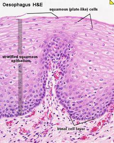 stratified squamous epithelium tissue...