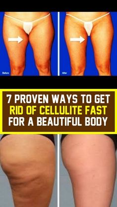 7 Proven Ways To Get Rid Of Cellulite Fast To Beautiful Body Lower Leg Muscles, Hormone Diet, Types Of Cardio, Reduce Cellulite, Improve Circulation, Respiratory System, Burn Calories, Nice Body, Get Healthy