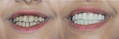 Get a whiter, straighter, and perfect smile in the comfort of your home with snap on veneers. Order your clip on veneers to improve your smile today! Best Clips, Perfect Smile, Dental, Teeth, Dentist Clinic, Tooth, Dental Health