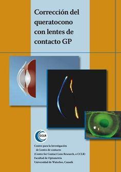 Adaptacion de lentes de contacto gp en keratoconus es  Adaptación de lentes de contacto Gas Permeables para Queratocono