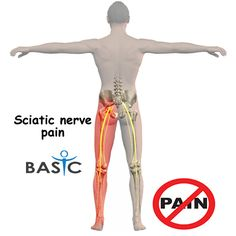 You don't need to live with #Sciatica Pain anymore because #BASICSPINE can help you to get rid of this pain. We have Surgical and Non-Surgical, Physical Therapy, Chiropractic Adjustments, Medication and more options to treat with. Call - (949)-335-7500 for more information!