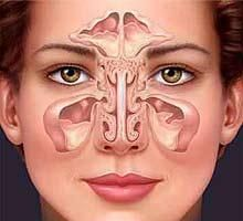 natural health remedies for sinusitis...