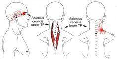 Splenius Capitis   The Trigger Point & Referred Pain Guide