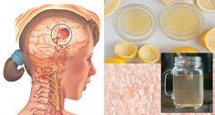 remedio casero migrañas