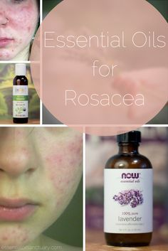 DIY Rosacea Remedies ~ Learn about 9 Essential Oil Based Recipes for treating Rosacea and preventing future flare ups. Facial Treatment, Natural Treatments, Skin Treatments, Rosacea Remedies, Acne Rosacea, Red Face Remedies, Natural Remedies, Skin Care, Essential Oils