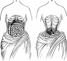 Effect of wearing a corset regularly