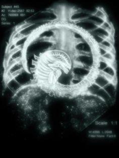 alien x-ray fbcdn-sphotos-a.akamaihd.net