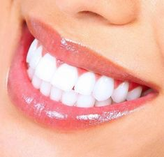Visit Claremont Dental Institute for family and cosmetic dentistry. Offering dental implants, porcelain veneers, tooth cleanings, and more. Teeth Whitening Methods, Natural Teeth Whitening, Whitening Kit, Skin Whitening, Natural Toothpaste, White Smile, Tips & Tricks, Cosmetic Dentistry, White Teeth