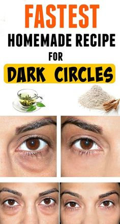 Today we would like to share with you a great remedy for dark circles and bags under your eyes. It is a very simple recipe, with ingredients found in every kitchen. of rice flour -cold, green tea. Dark Circles Under Eyes, Dark Under Eye, Dark Circle Remedies, Dark Circle Cream, Beauty Hacks For Teens, Under Eye Bags, Anti Ride, Puffy Eyes, Dark Eyes