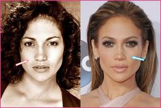 Jennifer Lopez cheek implants allegedly had cheek implants, and lip reduction, but when looking at these two images, the lip size difference Jennifer Lopez, Ariana Grande Nose Job, Jennifer Aniston Nose Job, Kylie Jenner Nose, Cheek Implants, Cheek Fillers, Dermal Fillers, Rhinoplasty Before And After, Plastic Surgery Procedures