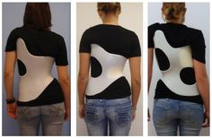"""""""Brace technology"""" thematic series - the Gensingen brace™ in the treatment of scoliosis Milwaukee Brace, Cohort Study, The Help, Wheelchairs, Therapy Ideas, Google Search, Drawing Reference, Mj, Women"""