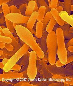 Clostridium sporogenes - Gram-positive, anaerobic, endospore-forming, rod prokaryote. Seen here are the rod-shaped vegetative cells and endospore-forming cells