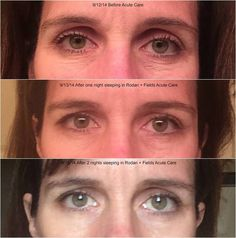 The before and after pics of R&F's new Acute Care are insanity. After just one use! Fill a wrinkle while you sleep..... Ridiculous!  https://visibleproof.myrandf.com/Shop/REDEFINE