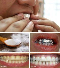 14 Tips For Beautiful & Healthy Teeth Aluminium Foil Teeth Whitening Teeth Whitening Remedies, Natural Teeth Whitening, Whitening Kit, Quick Teeth Whitening, Tooth Sensitivity, Teeth Bleaching, Dental Problems, Teeth Care, Healthy Teeth